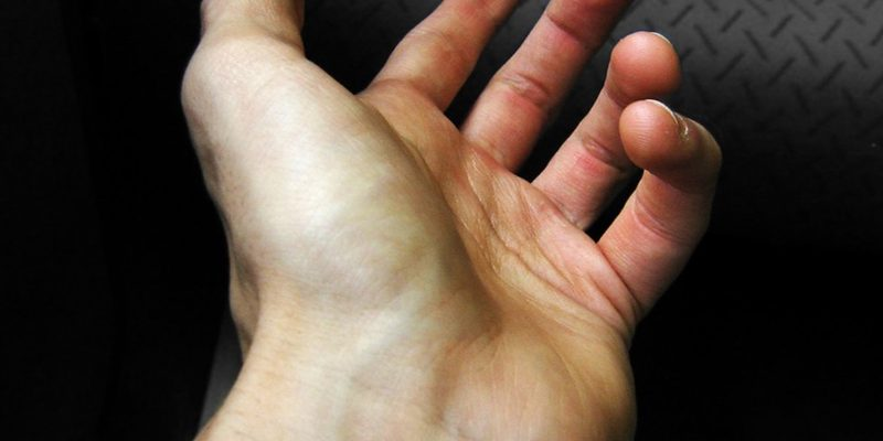 Vì sao nhìn vào tĩnh mạch dưới da ta lại thấy màu xanh thay vì màu đỏ?